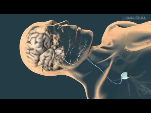 SYGNUS® Implantable Contact System
