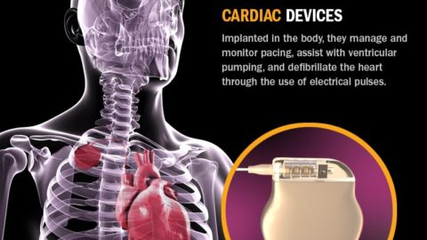 Cardiac Device Design Infographic
