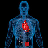 Low Resistance, Low Heat Rise Contacts for Heart Assist Devices