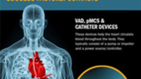 Infographic: Heart Assist Device Design