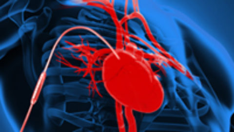 Video: Contacts for heart assist device design